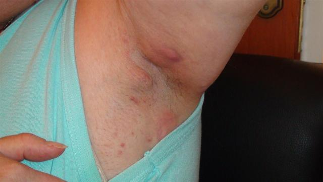 Rash in crease between thigh and groin - MedHelp